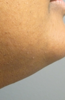 43 year old female with excess facial hair treated  presented for laser hair removal after 1132533