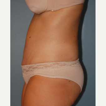 35-44 year old woman treated with Tummy Tuck after 3609815