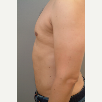 44 year old man treated with Liposuction after 3318210