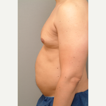 44 year old man treated with Liposuction before 3318210