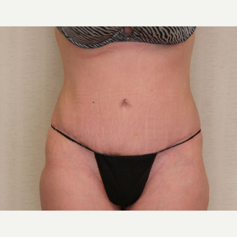 25-34 year old woman treated with Tummy Tuck after 3259033