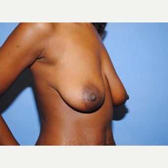 25-34 year old woman treated with Breast Lift with Implants before 3763287