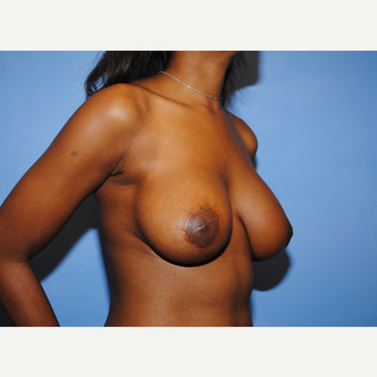 25-34 year old woman treated with Breast Lift with Implants after 3763287
