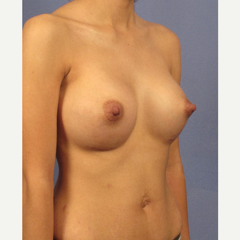 25-34 year old woman treated with Breast Implants after 3106232