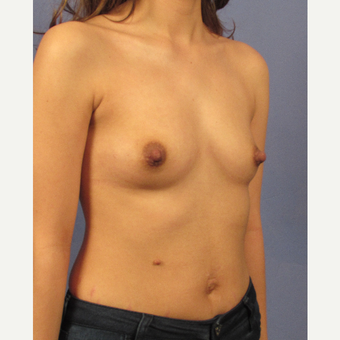 25-34 year old woman treated with Breast Implants before 3106232