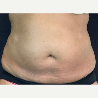 35-44 year old woman treated with SmartLipo MPX