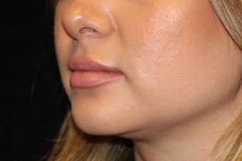 25-34 year old woman treated with Lip Augmentation 3502396