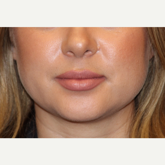 25-34 year old woman treated with Lip Augmentation after 3502396