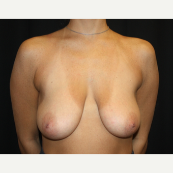 25-34 year old woman treated with Breast Lift with Implants before 3569327