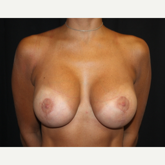 25-34 year old woman treated with Breast Lift with Implants after 3569327