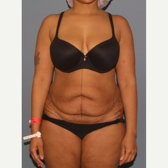 25-34 year old woman treated with Tummy Tuck before 3557793