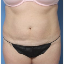 Woman treated with Tummy Tuck before 2643663