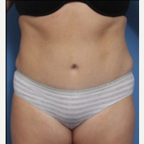 Woman treated with Tummy Tuck after 2643663