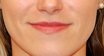Lip Enhancement with Restylane before 1144910