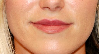 Lip Enhancement with Restylane after 1144910