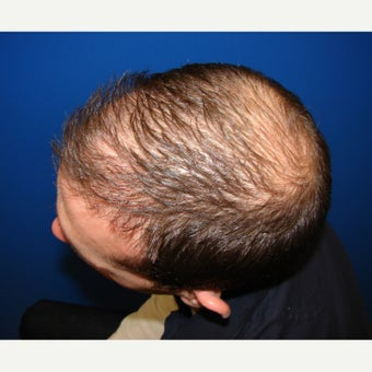 23 year old man treated with Propecia (finasteride) after 2509556