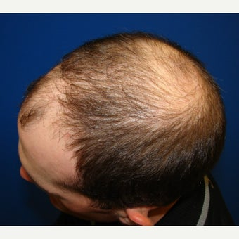 23 year old man treated with Propecia (finasteride) before 2509556