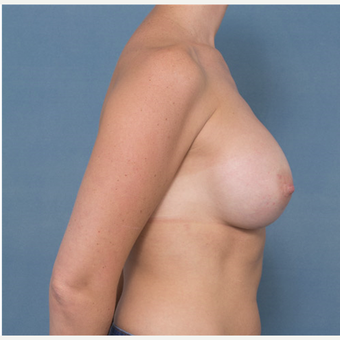 35-44 year old woman treated with Breast Augmentation after 3277807