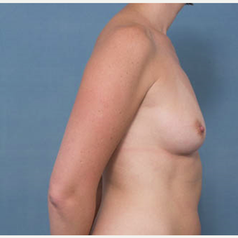 35-44 year old woman treated with Breast Augmentation before 3277807
