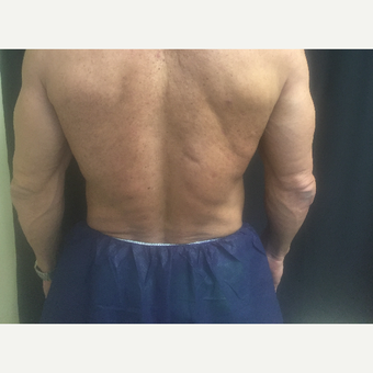 55-64 year old man treated with CoolSculpting before 3390699
