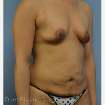25-34 year old woman treated with Mommy Makeover before 3368240