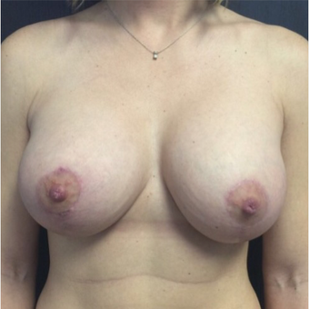 25-34 year old woman treated with Breast Lift after 3022659