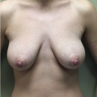 25-34 year old woman treated with Breast Lift before 3022659