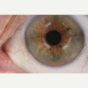 18-24 year old woman treated by P.E.R.F.E.C.T. for Pterygium® after 1908217