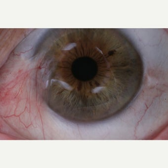 18-24 year old woman treated by P.E.R.F.E.C.T. for Pterygium® before 1908217