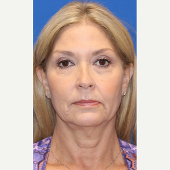 55-64 year old woman treated with Facelift before 3665974