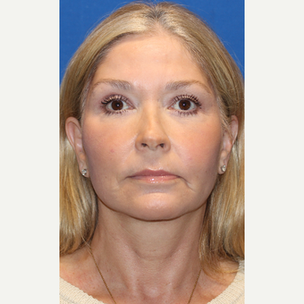 55-64 year old woman treated with Facelift after 3665974