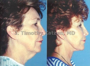 Neck lift and face lift after massive weight loss before 667228