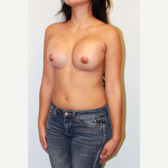 18-24 year old woman treated with Breast Augmentation after 3412529