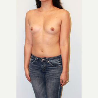 18-24 year old woman treated with Breast Augmentation before 3412529