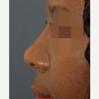 35-44 year old woman treated with Non Surgical Nose Job after 3244857