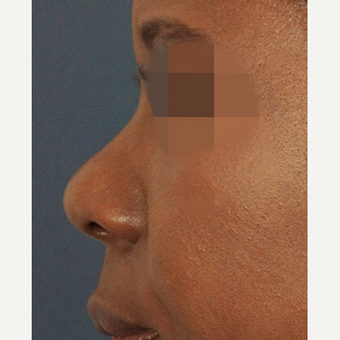 35-44 year old woman treated with Non Surgical Nose Job before 3244857