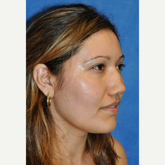 25-34 year old woman treated with Rhinoplasty before 3248052