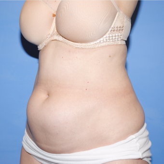 35-44 year old woman treated with Mini Tummy Tuck before 3763164