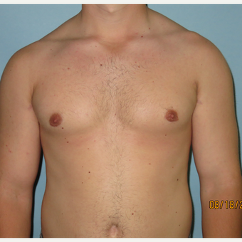 25-34 year old man treated with Male Breast Reduction after 3725424