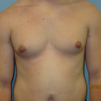 25-34 year old man treated with Male Breast Reduction before 3725424