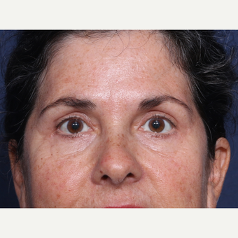 45-54 year old woman treated with Eyelid Surgery (view 1 of 2) after 3180897