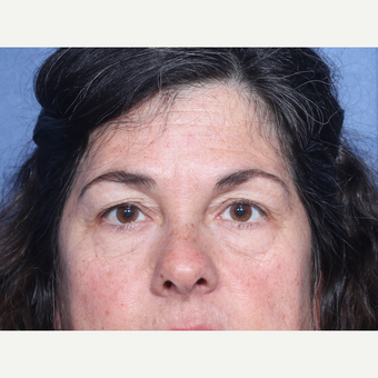 45-54 year old woman treated with Eyelid Surgery (view 1 of 2) before 3180897