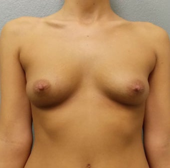 Breast Augmentation, Breast Implants before 1166005