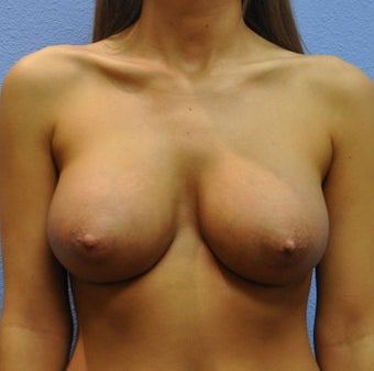 Breast Augmentation, Breast Implants after 1166005