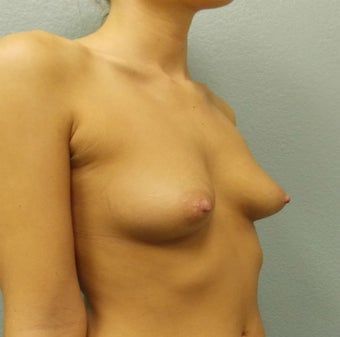 Breast Augmentation, Breast Implants 1166005
