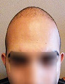 FUE – BHT Using Head, Beard and Body Hair after 196038