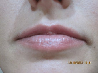 26 Year Old Female Treated for Lip Enhancement before 825200