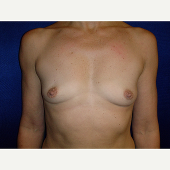 35-44 year old woman treated with Breast Augmentation before 3727150
