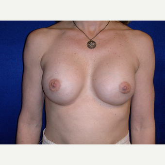 35-44 year old woman treated with Breast Augmentation after 3727150