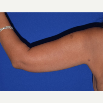45-54 year old woman's arms treated with Smart Lipo after 2978404